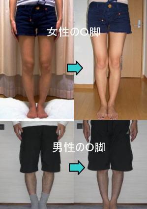 数多くのO脚をスラっと伸びた美脚に変えてきた【O脚解消実践講座】