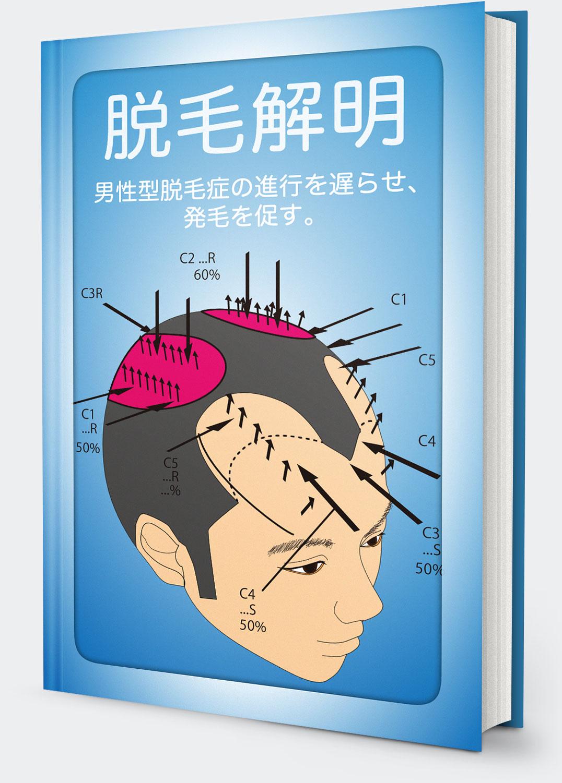 【脱毛解明】ハゲの真実、脱毛を送らせやがて発毛させる方法